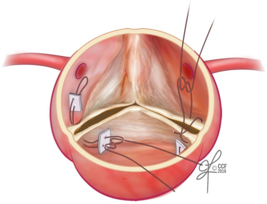 aortic valve sparing root replacement